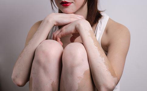 白癜风患者护理皮肤的几大要点
